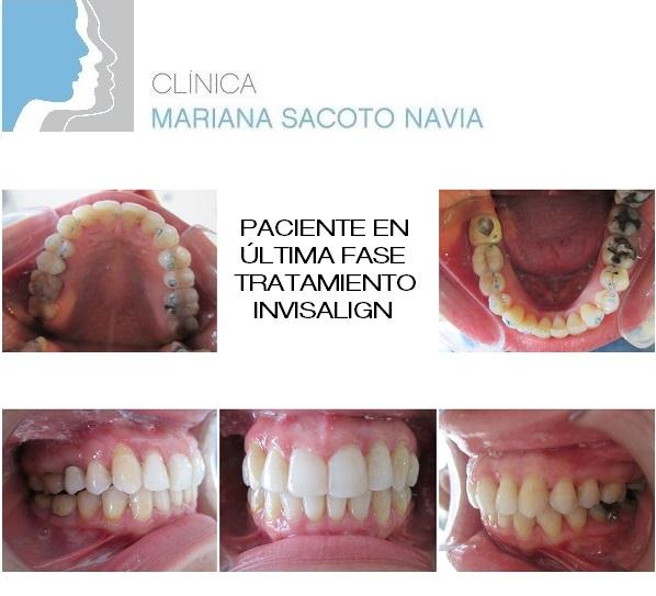 Clinica Mariana Sacoto Navia Ortodoncia Invisible Barcelona Expertos en Invisalign