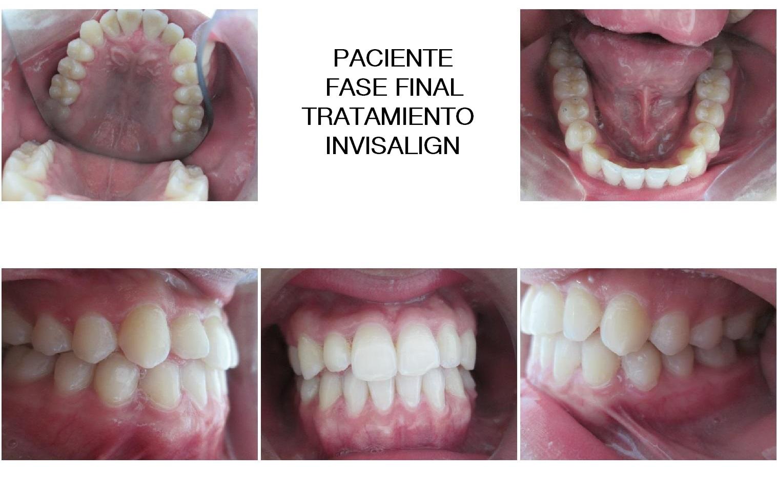 Clinica Mariana sacoto Navia expertos Ortodoncia Invisalign Barcelona